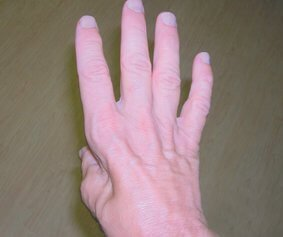 hand-atrophy