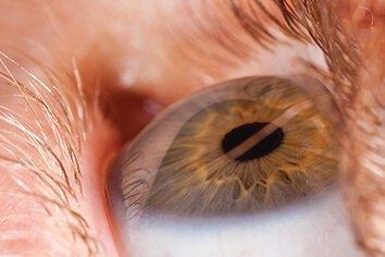 macular small